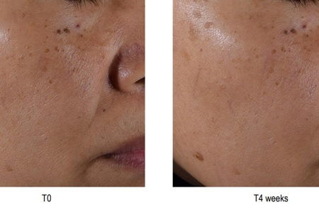 Efficacy on Asian skin type proven